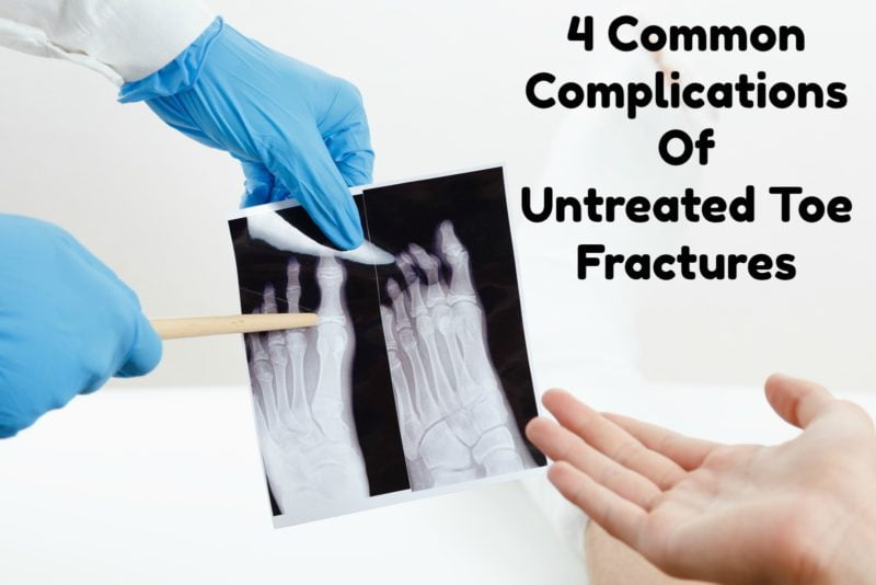 4 Common Complications of Untreated Toe Fractures