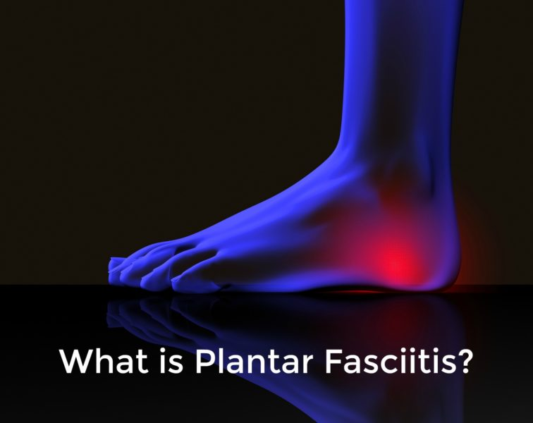 Ask the Podiatrist: What is Plantar Fasciitis?