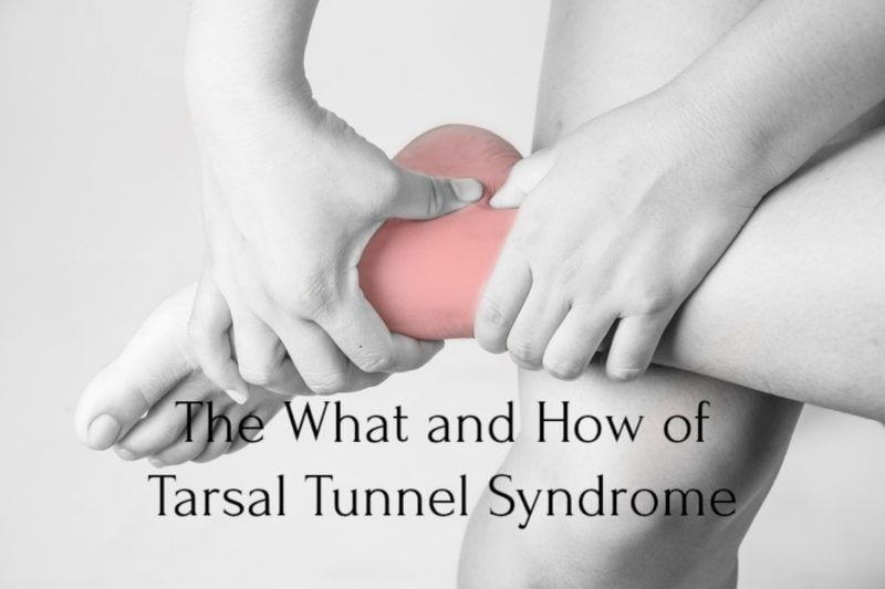 The What and How of Tarsal Tunnel Syndrome