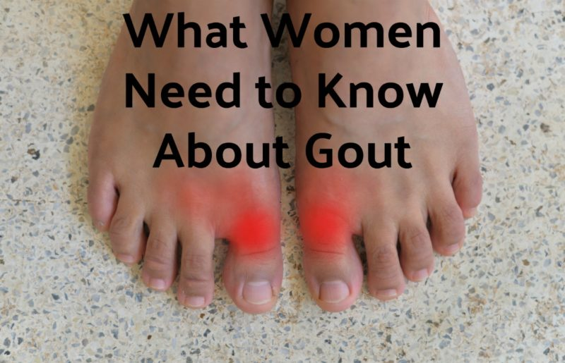 What Women Need to Know About Gout