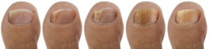 How to Prevent Toenail Fungus | bigstock Ringworm of the Nail Sequence 152230544