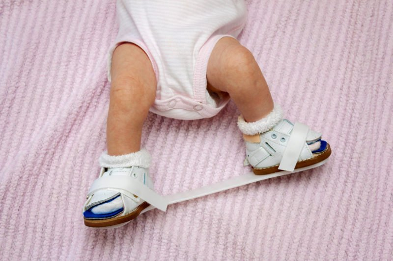 What is a Clubfoot?
