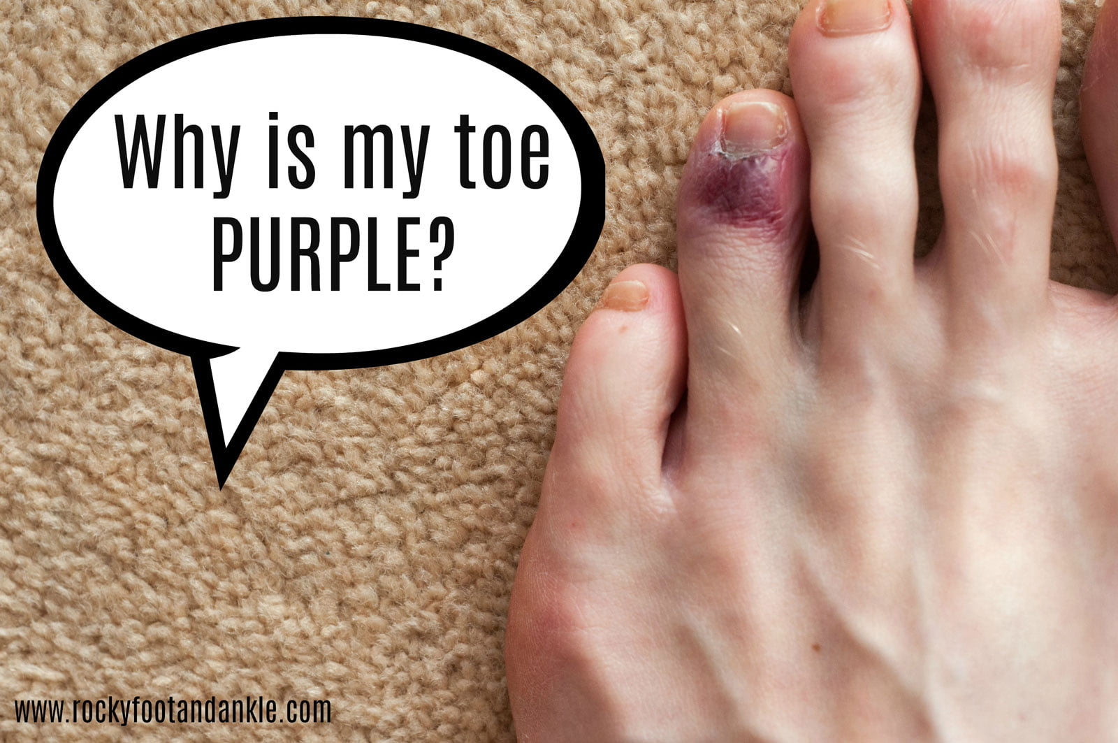 why is my toe purple?