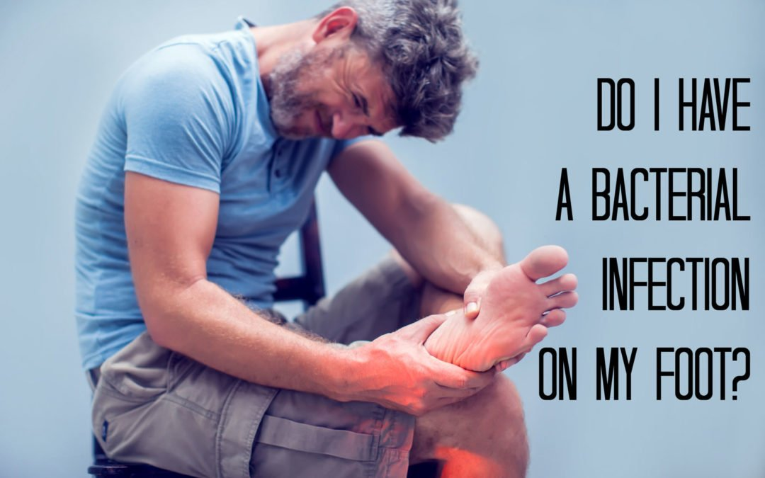Do I Have a Bacterial Infection on My Feet?