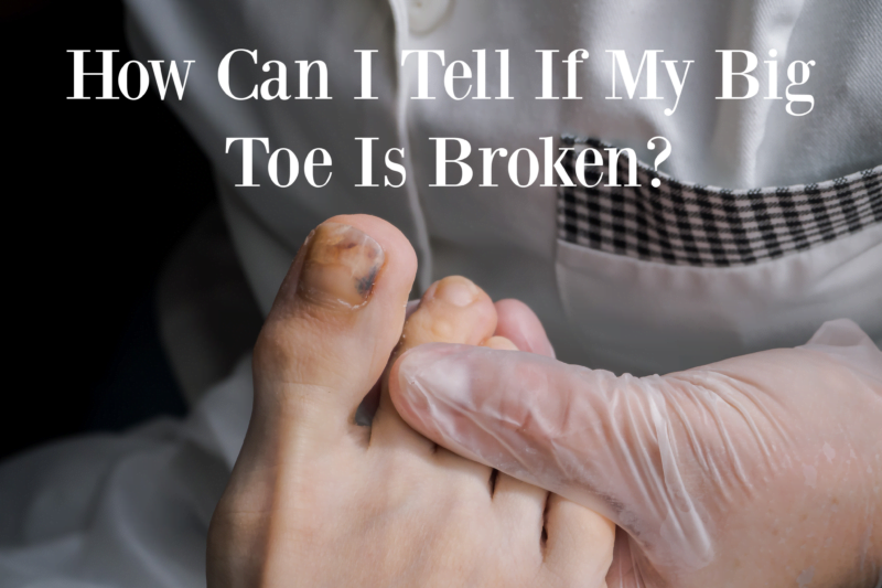 How Can I Tell If My Big Toe Is Broken?