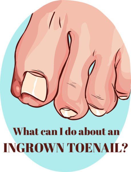 What Can I Do About an Ingrown Toenail?
