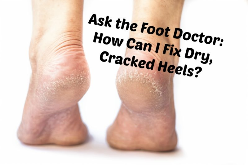 Ask the Foot Doctor: How can I Fix Dry, Cracked Heels?