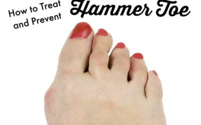 How to Treat and Prevent Hammer Toe
