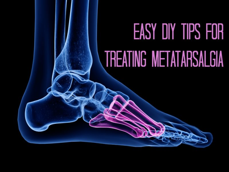 Easy DIY Tips for Treating Metatarsalgia