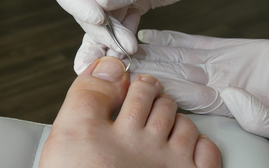 What You Should Know After Ingrown Toenail Surgery