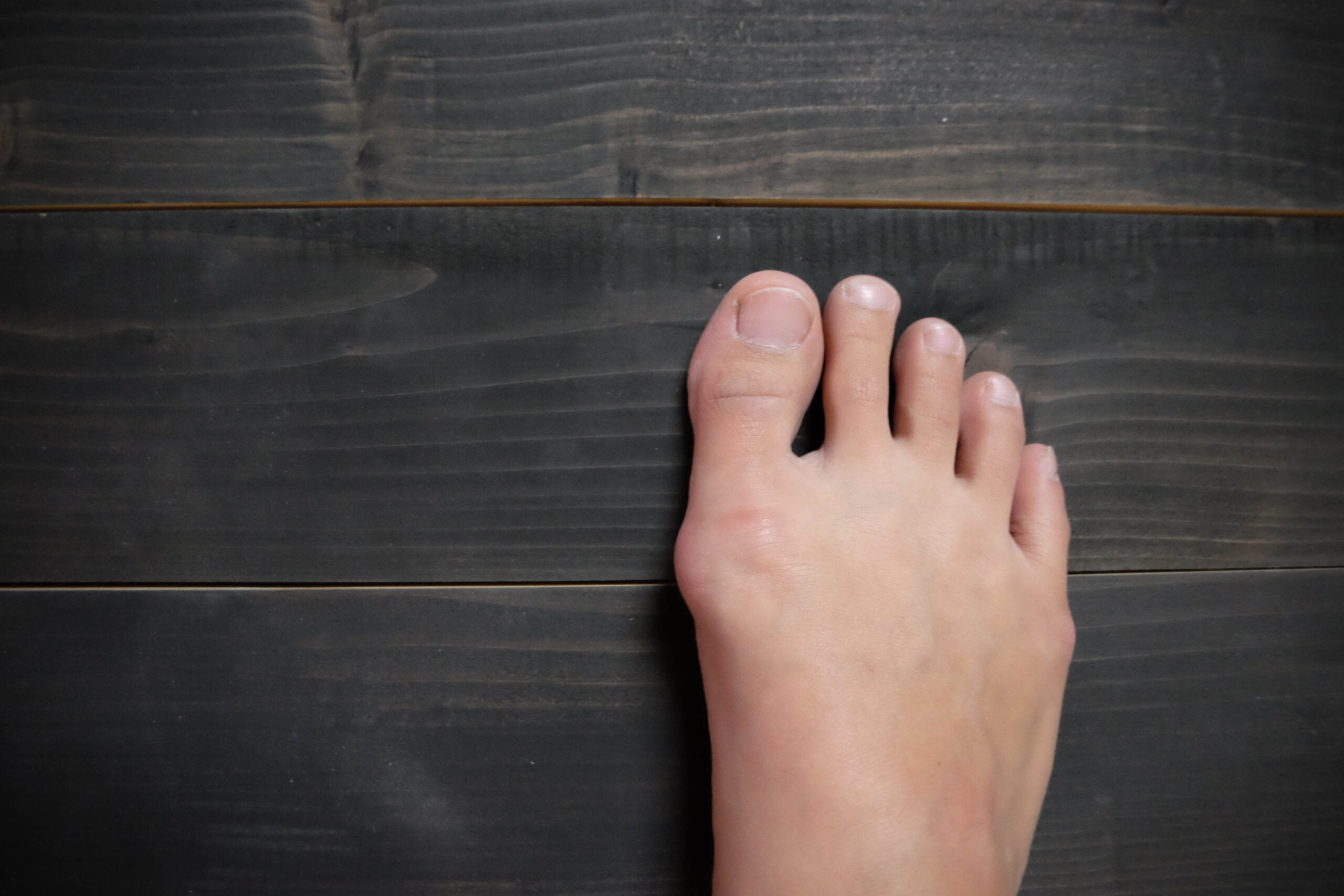 foot with bunion